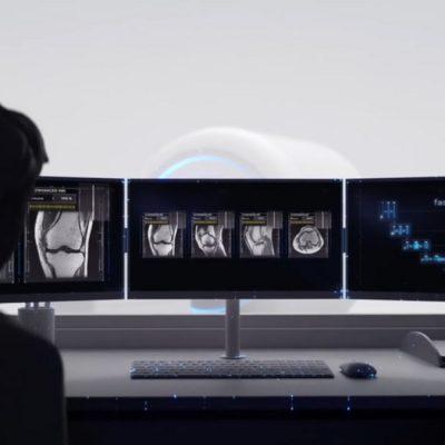 تولید تصاویر MRI توسط هوش مصنوعی فیسبوک در عرض چند دقیقه
